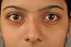 """Dark circles is a conditions in which the under eye/area under the eyes gets rough and black, most of the peoples are afraid of getting dark circles because it reduces the beauty of the face. Today we""""ll share some Home Remedies To Remove Dark Circles. Eye Cream For Dark Circles, Dark Circles Under Eyes, Eye Circles, Anti Aging Eye Cream, Healthy Eyes, Eye Wrinkle, Puffy Eyes, Dark Eyes, Dark Skin"""