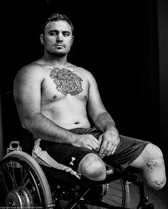10 photos of seriously wounded vets remind us about the real costs of war.