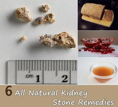 6 All Natural Kidney Stone Remedies 6 All Natural Kidney Stone Remedies If you've ever had a kidney stone, you're not likely to forget the stinging pain that comes along with these tiny masse