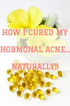A natural yet very effective way to treat and cure hormonal acne