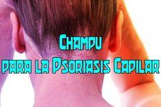 Remedios Caseros Para La Psoriasis - Basta De Psoriasis: Champu para la Psoriasis Capilar | ¿Cómo Luchar Co...