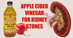 How To Use Apple Cider Vinegar To Dissolve Kidney Stones - And this is why it works.