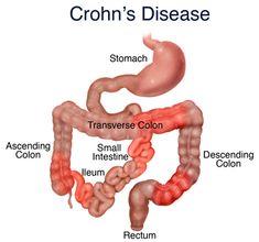 Cannabis Putting Crohn's Disease into Remission? For detail visit: http://rsoheals.com.au/