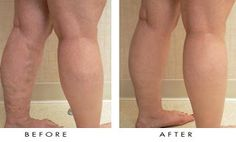 How to Cure and Prevent Varicose Veins Naturally ~ MediMiss