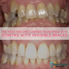 Crooked are more susceptible to tooth decay. This can result in long-term damage to the teeth and gums. Braces can help you have and avoid such issues. Teeth Implants, Dental Implants, Dental Surgery, What Is Tooth Decay, Dental Bridge Cost, Invisible Braces, Teeth Braces, Dental Services, Teeth Whitening