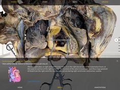 Tricuspid Valve, Human Anatomy, Augmented Reality, Lab, Apps, Medical, Store, Google, Storage