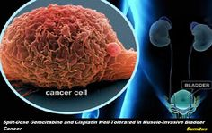 Split-Dose Gemcitabine and Cisplatin Well-Tolerated in Muscle-Invasive Bladder Cancer   A study presented at the 2017 American Urological Association Annual Meeting demonstrated that a split-dose of gemcitabine and cisplatin as a neoadjuvant chemotherapy regimen for treating muscle-invasive bladder cancer (MIBC) has a good pathologic response with a high safety profile.