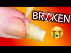 MY LIFE IS OVER I AM BROKEN / Fixing my broken nail - YouTube