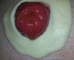 Ostomy Barrier Ring on skin