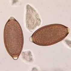 Whipworm and Your Dog/Cat Veterinarian Technician, Intestinal Parasites, Medical Laboratory Science, Vet Med, Animal Science, Cat Health, Worms, Pet Care, Your Dog