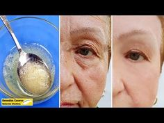 Aplicar Esta Mascarilla Casera - Eliminar Las Arrugas En La Cara Y Reafirmar La Piel Rápidamente - YouTube Home Remedies For Wrinkles, Home Remedies For Hemorrhoids, Creepy Skin, Healthy Skin Tips, Homemade Mask, Face Wrinkles, Natural Facial, Face Treatment, Wrinkle Remover