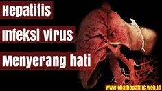 Hepatitis adalah penyakit yang menyerang hati bagi orang kebanyakan orang penyakit ini lebih di kenal dengan demam kuning atau penyakit kuning atau juga konengeun dalam bahasa Sunda. Hepatitis merupakan peradangan hati yang sebabkan oleh infeksi virus yang menyerang organ hati. Hepatitis terbagi menjadi beberapa tipe yaitu : hepatitis A, heptitis B, Hepatitis C, Hepatitis D, dan hepatitis E. Jenis atau tipe yang paling umum terjadi di Indonesia adalah hepatitis tipe A dan hepatitis tipe B…