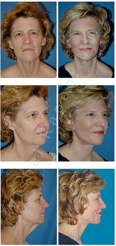 Details: This patient was concerned with drooping of the upper eyelids, sagging of the jaw line and neck after massive weight loss. She is seen here 5 months after her procedure. Note the youthful contour of her neck, jawline, and her eyes.    The olde fat loss exercises  for best reliable weight and fat loss now   http://www.nolanservicehu
