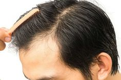 Hair transplant in Bangalore is one of the best surgical hair loss treatments in India. HTW offers the effective hair loss treatment at low cost. Hair Transplant Women, Hair Transplant Surgery, Best Hair Transplant, Losing Hair Women, Hair Loss Women, Hair Facts, Hair Loss Medication, Hair Specialist, Hair Restoration