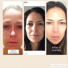 Results after 6 months on our adult stem cell derived  skin care
