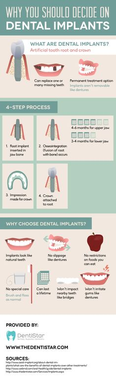 Dental implants may be right for you if you want to replace one or more missing teeth without the worry and inconvenience of dentures! Check out this infographic from an orthodontist in Glenview to see other reasons why dental implants are a great choice.