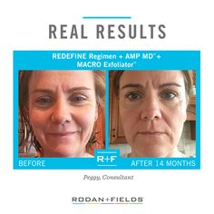 """REDEFINE Regimen with AMP MD™ and MACRO Exfoliator™ are providing me the anti-aging results I desired: simply the best version of my 47 year old self."" - R+F Consultant Peggy"