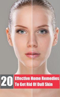 20 Remedios Caseros Efectivos para deshacerte de la Piel Opaca. 20 Effective Home Remedies To Get Rid Of Dull Skin