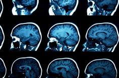 مطالب مرتبط: اتیسم چگونه مغز را تغییر می دهد؟ ارتباط بین رفتارهای ضد اجتماعی با…