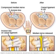Illustration showing carpal tunnel release procedure