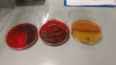 Serratia blood and macconkey plates