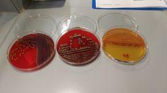 Serratia blood and macconkey plates