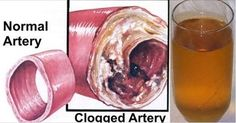 Plaque buildup in the blood vessels is a serious condition in which the arteries get blocked by deposits of fatty plaque, which restrict the blood flow and lead to heart and brain problems.