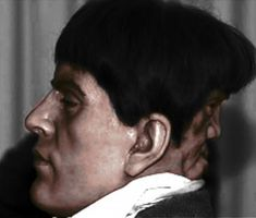 Edward Mordake literally has two faces: one in the front of his head, and another face in the back… a human looking face with it's own expressions. He was a handsome and charming young man, but just from the front, because whenever he turned around, it was like a dark cloud came about.