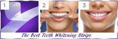 In Crest remains the leading brand for the best whitening strips available in the dental market. Expect to see whiter teeth within one week! Activated Charcoal Teeth Whitening, Best Teeth Whitening, Blend A Med, Crest 3d White, White Teeth, Dental Care, How To Apply, Good Things, Beauty