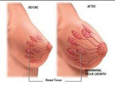 Breast Actives is the best natural breast enhancement cream made it with pueraria mirifica that help you to lift, enlarge, and firming your breasts - BUY BREAST ACTIVES. Ayurveda, Ayurvedic Herbs, Ayurvedic Remedies, How To Get Bigger Breats, Breast Growth Tips, How To Get Curves, Increase Bust Size, Enhancement Pills, Pin On