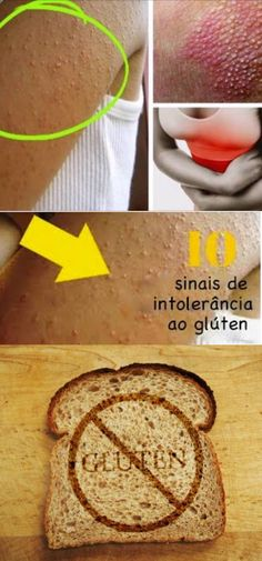 10 sintomas comuns de quem sofre de intolerância ao glúten  #gluten #intolerancia #dieta #saude #dicas #dicascaseiras