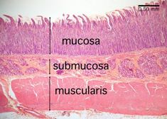 histology duodenum   Small Intestine Histology - Duodenum (labels) - histology slide -