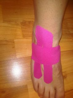 KT Tape for lateral foot pain (inferior extensor retinaculum)
