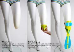 Prosthetic flipper - Neptune prosthesis