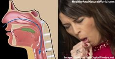 Types of Mucus: What the Color of Your Mucus Tells About Your Health