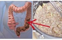 Homemade Mixture that Will Clean Your Colon of Toxic Waste - http://nifyhealth.com/homemade-mixture-that-will-clean-your-colon-of-toxic-waste/