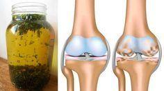TU SALUD Y BIENESTAR : Infusión casera para aliviar y tratar la artrosis producida por el desgaste del cartílago