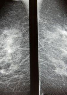 #Diez mitos sobre el cáncer de mama - Telemetro: Telemetro Diez mitos sobre el cáncer de mama Telemetro El cáncer es una enfermedad muy…