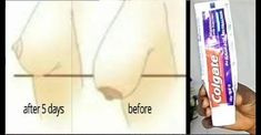 Tighten Sagging Breast in just 5 days using Toothpaste - Eti Frank Beauty Care, Diy Beauty, Beauty Hacks, Onion For Hair, Magic Words, Sagging Skin, Wrinkle Remover, What Happened To You, Tips Belleza