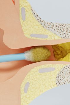 Earwax is known to cause hearing loss and memory loss. Use this easy trick to clear earwax. Health Facts, Health Tips, Health And Wellness, Health And Beauty, Health Fitness, Home Remedies For Sickness, Ear Health, Survival Books, Ear Wax