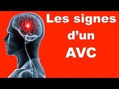 Accident vasculaire cérébral: Sauvez une vie