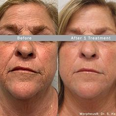 """Morpheus8 is one of our most popular treatments at LGS • Why is it so popular? ✨This treatment triggers your body's natural healing…"""" • Dec 10, 2020 at 11:42pm UT Laser Rejuvenation, Skin Tightening, Acne Scars, Stretch Marks, Health Coach, Natural Healing, Health And Beauty, Facial, Spa"""