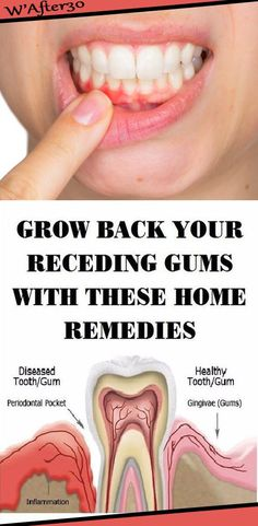 Grow Back Your Receding Gums In No Time With The Help Of These Natural Remedies - Health Advices Natural Hemroid Remedies, Natural Add Remedies, Natural Remedies For Migraines, Natural Healing, Natural Treatments, Natural Oil, Natural Antibiotics, Natural Beauty, Holistic Healing