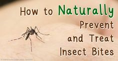 How to Naturally Prevent & Treat Insect Bites