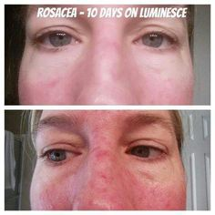Luminesce serum (honestly, the whole skin care line! ) can help clear up eczema, acne, scars, stretch marks, heal wounds, and so much more!!!! Simply amazing is all I have to say! #inthismomentinternational on Facebook can help lead you in the right direction.  www.inthismoment.jeunesse.com Acne Rosacea, Younger Skin, Acne Scars, Anti Aging Skin Care, How To Feel Beautiful, Health And Beauty, Serum, Designer, Anti Aging