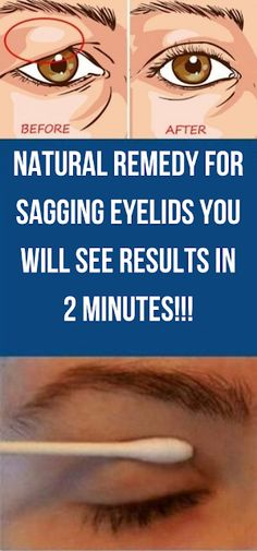 Remedy For Sagging Eyelids You Will See Results In 2 Minutes! Natural Remedy For Sagging Eyelids You Will See Results In 2 Minutes! Natural Remedy For Sagging Eyelids You Will See Results In 2 Minutes! Health Tips For Women, Health Advice, Health And Beauty, Health Care, Beauty Skin, Face Beauty, Women Health, Mental Health, Natural Eye Makeup