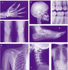 Poster - Purple Effect X-Rays Of The Human Body (Picture Poster Medical Art) Doctor Role Play, Playing Doctor, Dramatic Play Area, Dramatic Play Centers, Science Experience, Diy Doctor, Role Play Areas, Medical Art, Play Centre