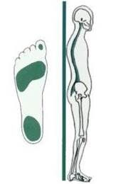 Pes Excavatus / holvoet. Holvoeten kenmerken zich door klauwtenen, overgevoelige voetzolen en een verhoogde spierspanning. Lage rug- en nek- en voorvoetpijnen kunnen hieruit voortkomen. De klachten nemen toe bij rustsituaties (zoals staan, liggen en zitten) en nemen af bij bewegen.