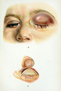 """Diphtheria can cause an acute conjunctivitis if the bacteria infect the conjunctiva of the eye. If it is not brought under control promptly, the toxins exuded by the bacteria can cause necrosis in both the eyelid and the cornea, which can lead to serious vision problems or blindness in patients. Historically, blindness was a major problem for survivors of diphtheria, scarlet fever, ocular gonorrhea, and smallpox. """" Atlas of External Diseases of the Eye"""" , Dr. Haab, 1899."""