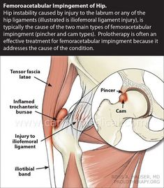 Problems of getting an accurate diagnosis and appropriate treatment options for Femoroacetabular Impingement – Caring Medical Bursitis Hip, Hip Dysplasia, Hip Pain, Back Pain, Hip Impingement Exercises, Hip Anatomy, Human Anatomy, Hip Problems, Spine Health